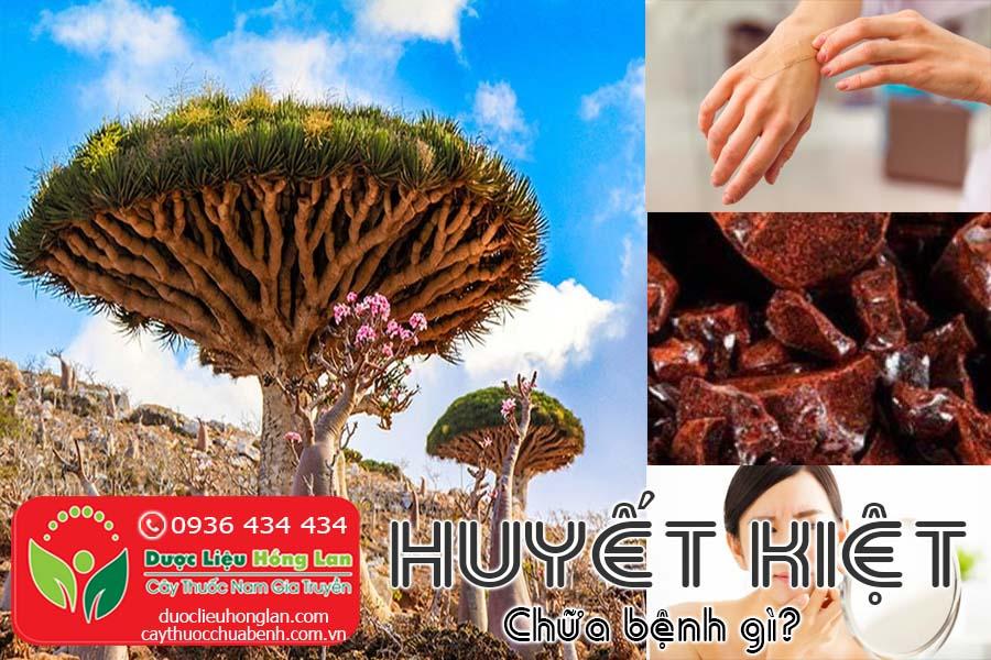 HUYET-KIET-CHUA-BENH-GI-CTY-DUOC-LIEU-HONG-LAN